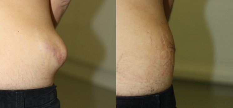 Cyst Removal Prices Costs Skin Surgery Laser Clinic