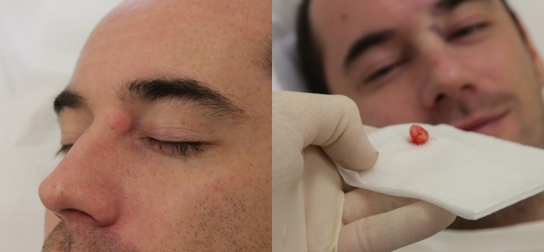 Cyst Removal Prices, Costs | Skin Surgery Laser Clinic Sebaceous Cyst Face