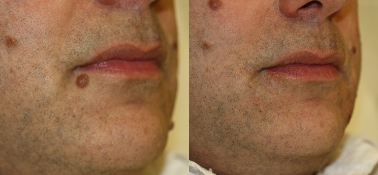 Mole Removal Prices Costs Skin Surgery Laser Clinic