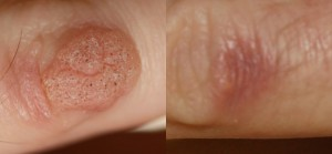 wart removal before and after