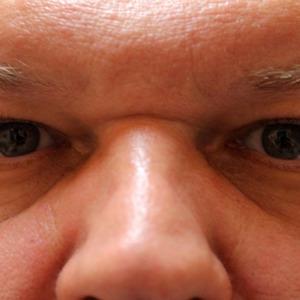 Xanthelasma Treatments London | Skin Surgery Laser Clinic